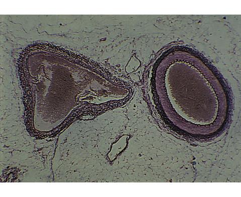 Arterie und Vene quer - Praeparate und Foliensaetze-3