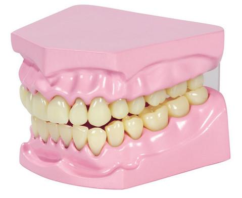 Kau- und Zahnmodell-2