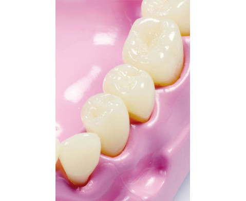 Kau- und Zahnmodell-3
