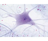 Nervenzellen, (Rückenm.), quer - Präparate und Foliensätze