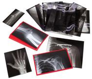 Röntgenbilder eingerichteter Knochen, 14 Stück