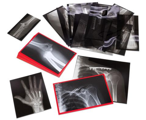 Roentgenbilder eingerichteter Knochen