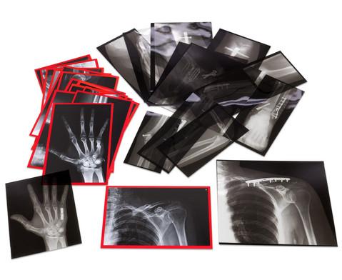 Roentgenbilder eingerichteter Knochen-2