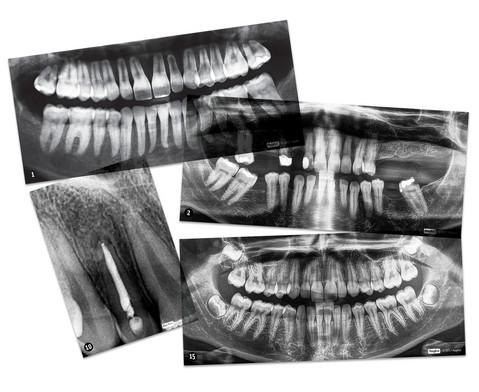 Zahnmedizinische Roentgenbilder