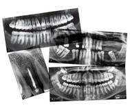 Zahnmedizinische Röntgenbilder